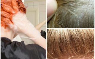 Если покрасить волосы краской вши умрут? реальные способы выведения