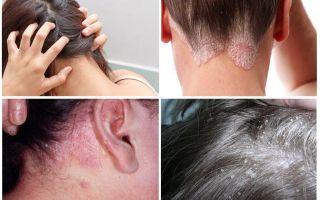 Почему чешется голова, если вшей нет — самые распространенные причины